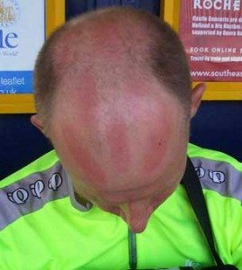 Cycling sunburn